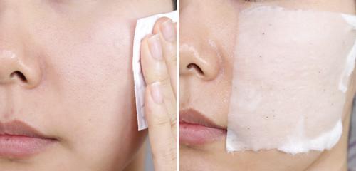 Skincare step