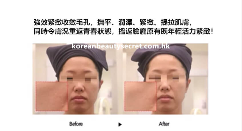 Phymongshe  臉部「緊身衣」緊顏提升極速面膜