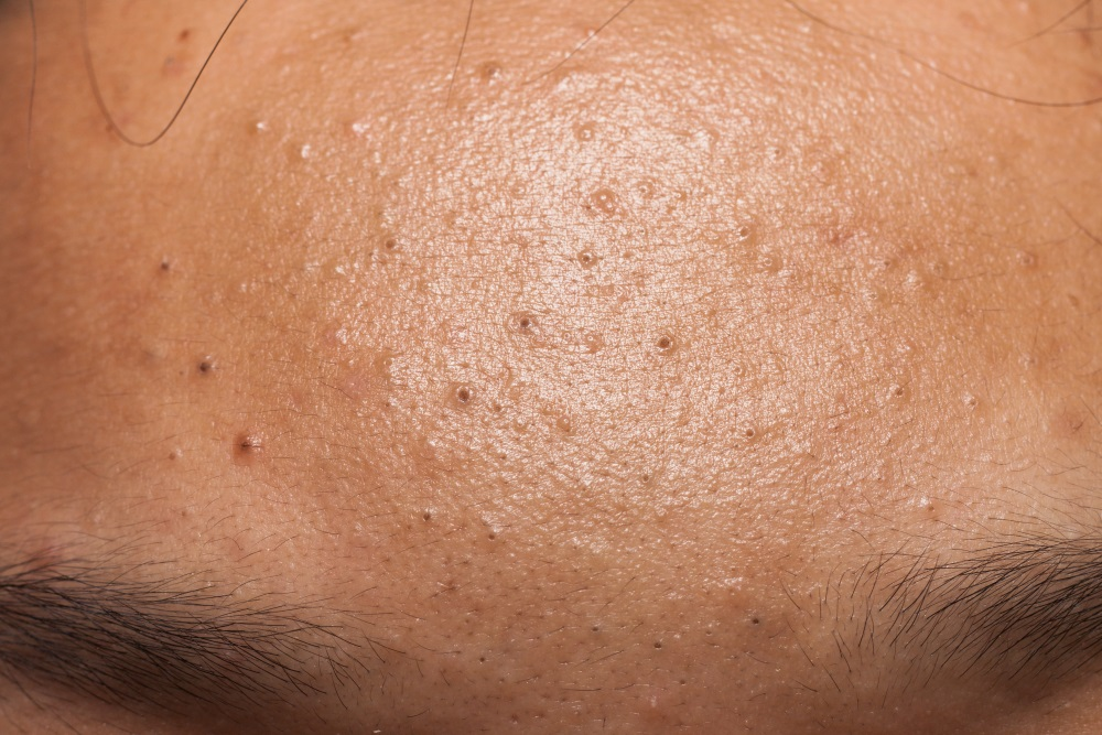 非發炎性暗瘡類型 粉刺