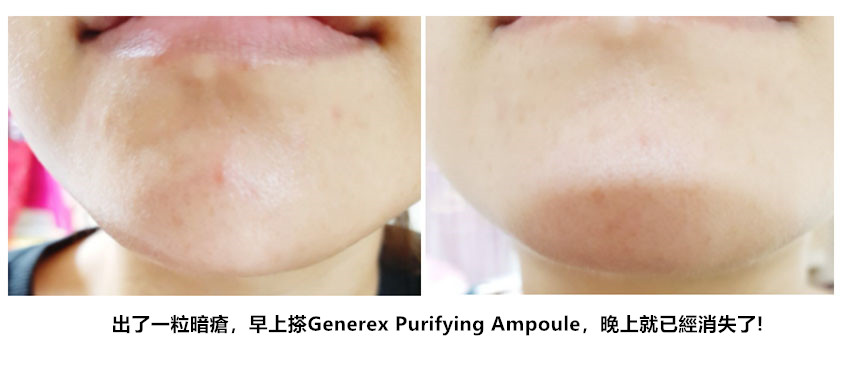 Generex 排毒抗炎補水安瓶精華