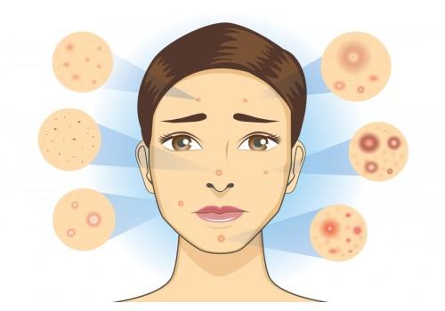 萬年暗瘡總係好唔到? 了解暗瘡類型、成因和對應方法,教你回復白滑美肌!