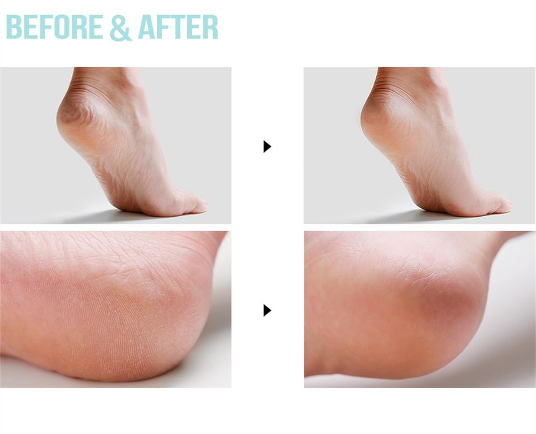 Bepure Miracle Heel Balm 奇蹟美足腳跟防裂護腳霜 + 腳膜套