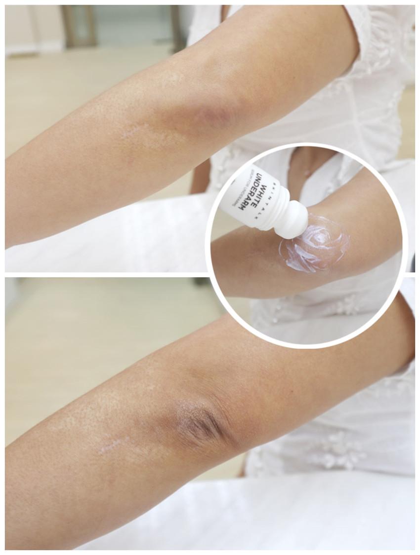 Skintalk White Armpit